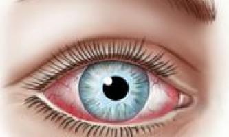 Алергічний кон`юнктивіт