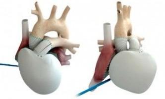 Американські вчені тестують роботу нового штучного серця