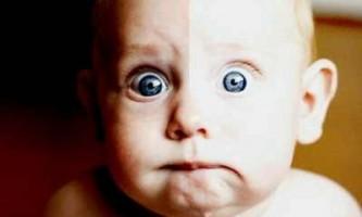Анемія у однорічної дитини симптоми