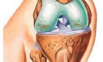 Артроз колінного суглоба: лікування захворювання