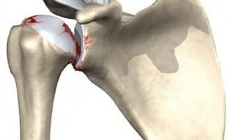 Артроз плечового суглоба - причини і симптоми