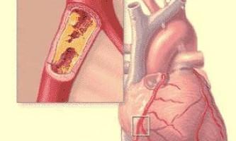 Атеросклероз коронарних артерій