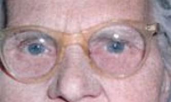 Бліда шкіра при анемії