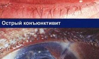 Біль, почервоніння очей, що робити, до якого лікаря звертатися