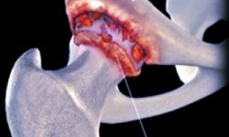 Біль, скутість в стегні при деформуючому остеоартрозі