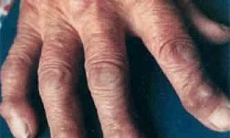 Болі, зміна форми і інші ознаки поліартрози пальців кисті