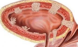 Чим лікувати запалення сечового міхура - таблетками або народними засобами