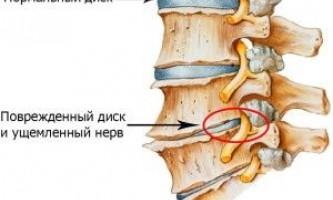 Чим небезпечний корінцевий синдром при остеохондрозі?