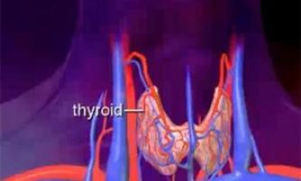 Що таке аденома щитовидної залози