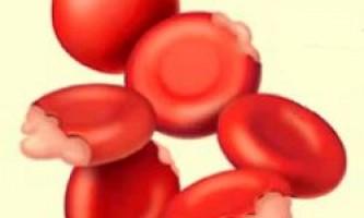 Що таке дізерітропоетіческая анемія