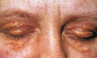 Що таке гіперліпопротеїнемія і порушення ліпідного обміну