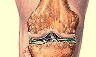 Що таке остеоартрит