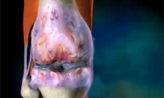 Деформуючий остеоартроз це захворювання суглобів