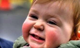 Діатез у дітей лікування препарати