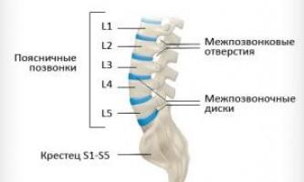 Дорсальная протрузія міжхребцевих дисків