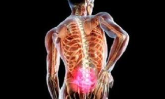 Грижа попереково - крижового відділу хребта: причини, симптоми