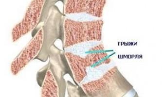 Грижа шморля: лікування, симптоми, причини