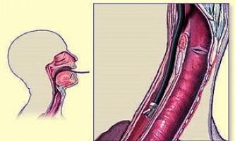 Печія, відрижка повітрям, відрижка як симптоми езофагіту
