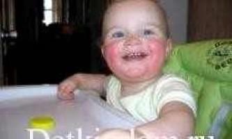 Ексудативно катаральний діатез у дітей