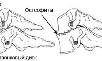 Як діють і які бувають мазі при остеохондрозі поперекового відділу?