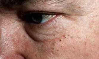 Як позбутися від закритих і відкритих комедонов на обличчі. Огляд ефективних методів лікування