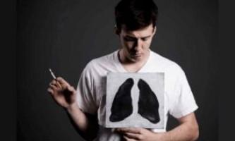 Як лікувати кашель курця