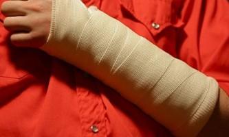 Як оговтатися і відновити руку після перелому?