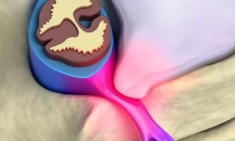 Як проводиться профессіоанльная діагностика болю в спині?