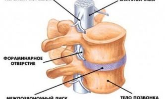 Як розпізнати грижу міжхребцевого диска: симптоми і ознаки захворювання