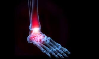 Які переломи кісточки бувають і як їх лікувати?