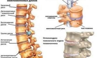 Які ознаки говорять про наявність поперекового остеохондрозу?