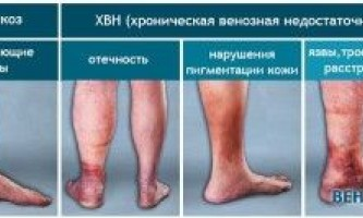Які венотоникі застосовують при остеохондрозі?
