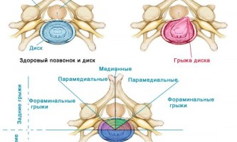 Які небезпеки форамінальні грижі міжхребцевого диска?