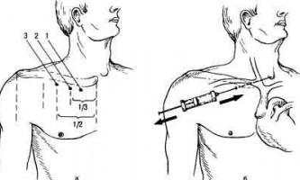 Катетеризація вен і артерій