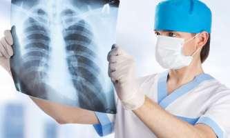 Народні засоби лікування кашлю