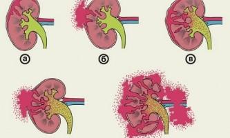 Клінічна картина забиття нирки