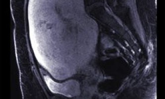 Комп`ютерна томографія (кт) і магнітно-резонансна томографія (мрт) черевної порожнини і малого таза