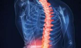 Комплекс з 15ти приголомшливо ефективних вправ для лікування міжхребцевої грижі