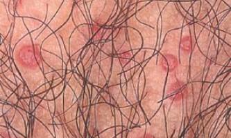 Круглі вузлики на статевих органах, стегнах, животі та інші прояви контагіозного молюска