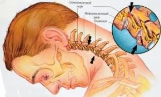 Що таке полісегментарної остеохондроз і як з ним боротися?