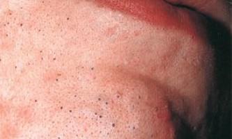 Лікування чорних і білих вугрів