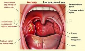 Лікування гострого тонзиліту або чим полоскати горло при ангіні?