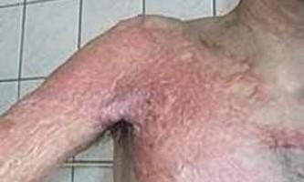 Лікування опікових рубців у дітей