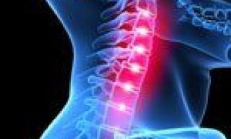 Лікування протрузії шийного відділу хребта