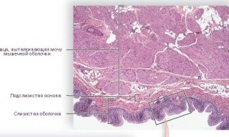 Лікування запалення сечового міхура