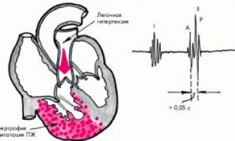 Легеневе серце: одна з ключових патологій серцевої діяльності