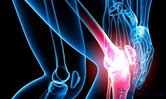 Не відкладайте лікування артритів колінного суглоба!