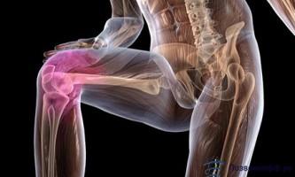 Не відкладайте лікування артрозу колінного суглоба!