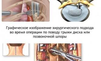 Чи обов`язкова операція при грижі диска