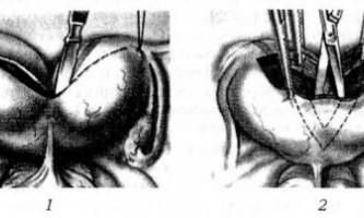 Операції при аномаліях розвитку матки